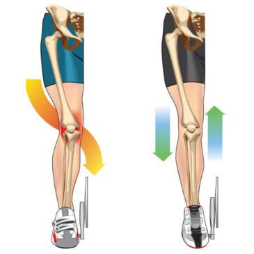 Болят колени?